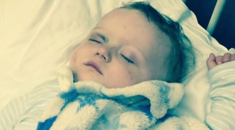 幼童 Oscar Webb 右眼無法救治,現已移除,需要裝上義眼。