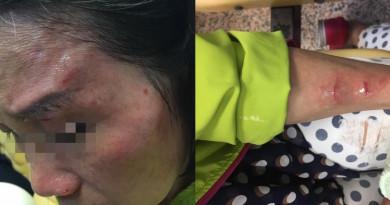 空拍機墜落台北夜市 女議員母親砸中受傷險失明