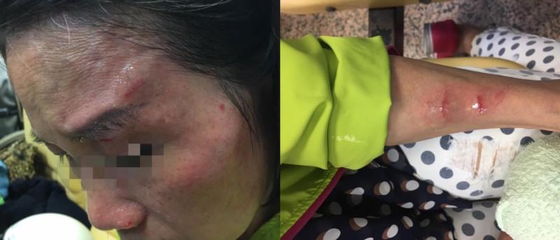 台北 寧夏夜市 空拍機 砸傷 婦人